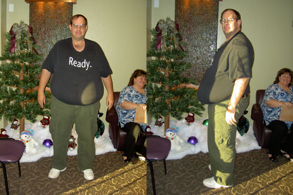 Before Surgery - 368 pounds